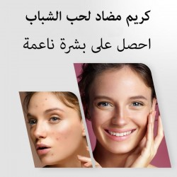 Cream for acne